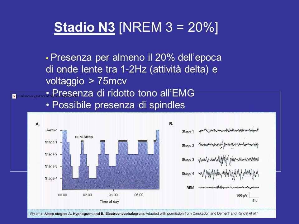 Stadio N3 [NREM 3 = 20%] • Presenza di ridotto tono all'EMG